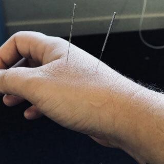 Dry Needling Tulsa, OK